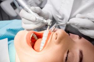 merrifield fairfax dentist