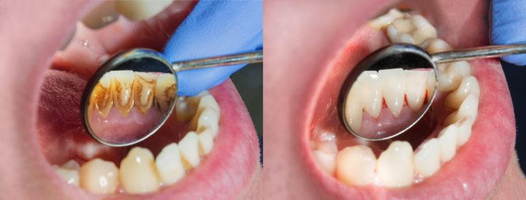 dentist merrifield fairfax virginia